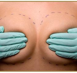 chirurgie-esthetique-seins-1