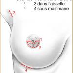 La Chirurgie Esthétique des SeinsЭстетическая хирургия молочной железы ( Увеличение груди )