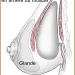 Эстетическая хирургия молочной железы ( Увеличение груди )