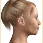 Косметическая хирургия ушей ( отопластика )